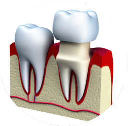 flikier-dental-clinic-crowns-home-03