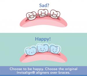 Align Dental Technology Invisalign