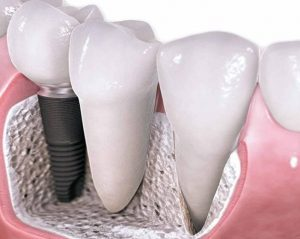 Best dental clinic for dental implants Costa Rica